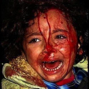 child_injured_screeming11